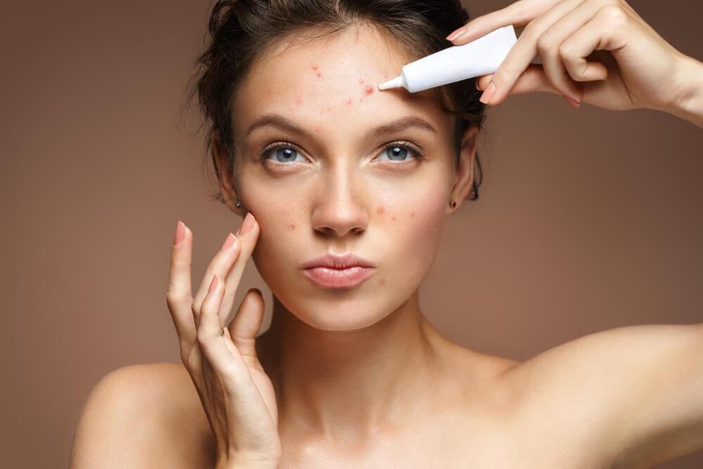 Manifestações da acne