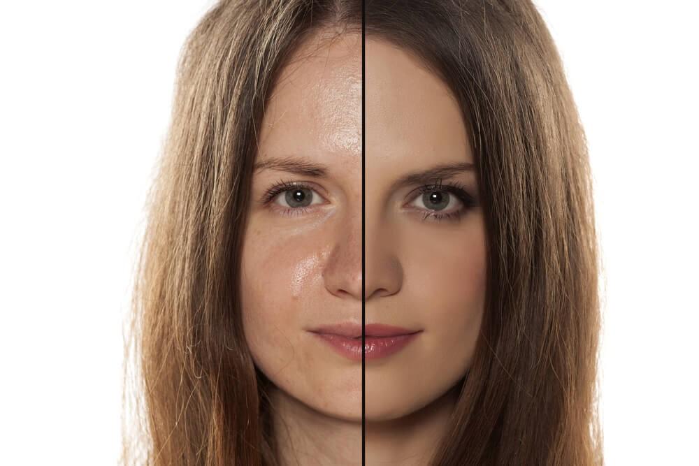 O que é a pele oleosa?