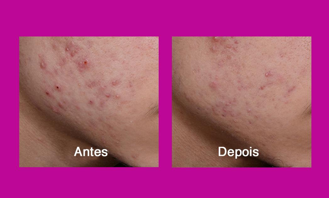 Resultados clínicos da Neutrogena® Visibly Clear® Máscara de Fototerapia Antiacne